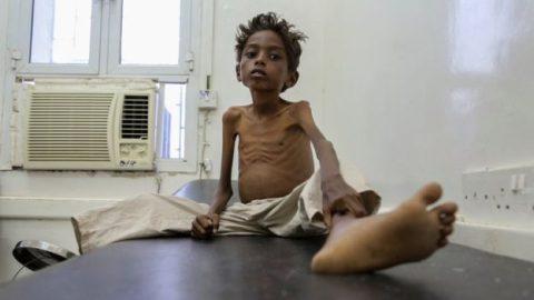 UN Declares World's Greatest Humanitarian Crisis Since 1945